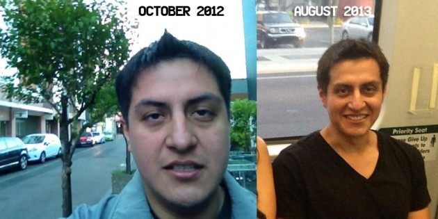 Jorge Before and After Hypothyroidism Face